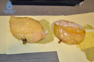 Woman Arrested For Fake Breast Implants With Cocaine