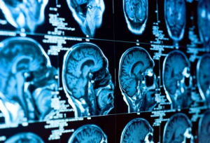 Neurologists Find 'Evil Patch' In Brain Scans Of Criminals