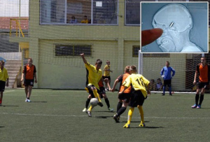 Bosnian Goalie Played 90-Minute Match With Bullet Lodged In His Head